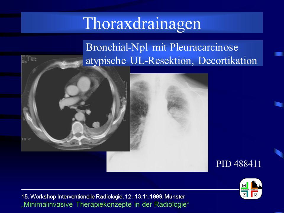 """15. Workshop Interventionelle Radiologie, 12.-13.11.1999, Münster """"Minimalinvasive Therapiekonzepte in der Radiologie"""" Thoraxdrainagen Bronchial-Npl m"""