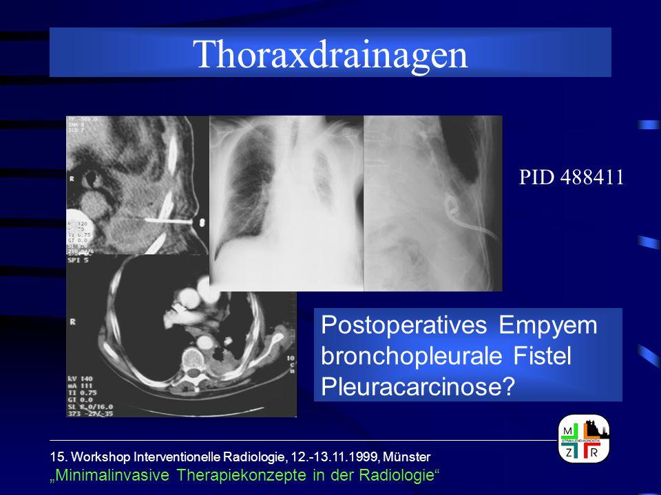 """15. Workshop Interventionelle Radiologie, 12.-13.11.1999, Münster """"Minimalinvasive Therapiekonzepte in der Radiologie"""" Thoraxdrainagen Postoperatives"""
