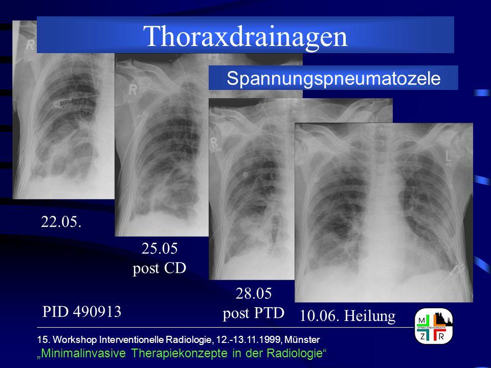 """15. Workshop Interventionelle Radiologie, 12.-13.11.1999, Münster """"Minimalinvasive Therapiekonzepte in der Radiologie"""" Thoraxdrainagen Spannungspneuma"""