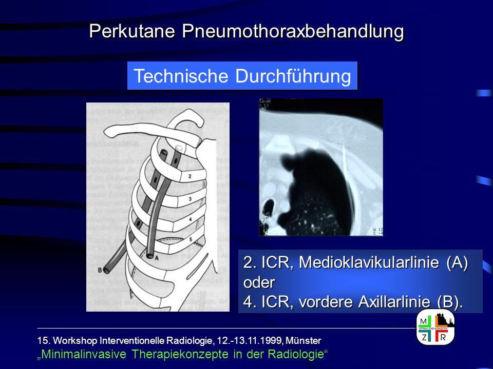 Technische Durchführung 2. ICR, Medioklavikularlinie (A) oder 4. ICR, vordere Axillarlinie (B). 15. Workshop Interventionelle Radiologie, 12.-13.11.19