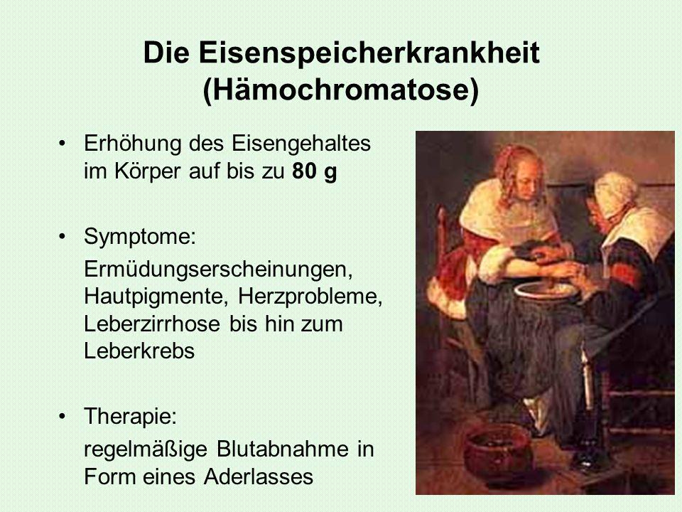 Die Eisenspeicherkrankheit (Hämochromatose) Erhöhung des Eisengehaltes im Körper auf bis zu 80 g Symptome: Ermüdungserscheinungen, Hautpigmente, Herzp