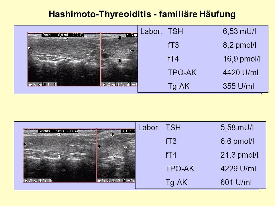 Hashimoto-Thyreoiditis - familiäre Häufung Labor:TSH6,53 mU/l fT38,2 pmol/l fT416,9 pmol/l TPO-AK4420 U/ml Tg-AK355 U/ml Labor:TSH5,58 mU/l fT36,6 pmo