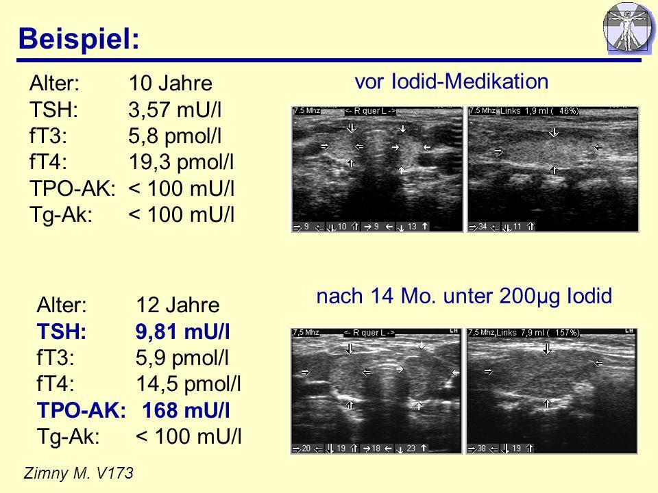 Beispiel: Zimny M. V173 Alter:10 Jahre TSH: 3,57 mU/l fT3: 5,8 pmol/l fT4: 19,3 pmol/l TPO-AK: < 100 mU/l Tg-Ak: < 100 mU/l vor Iodid-Medikation Alter