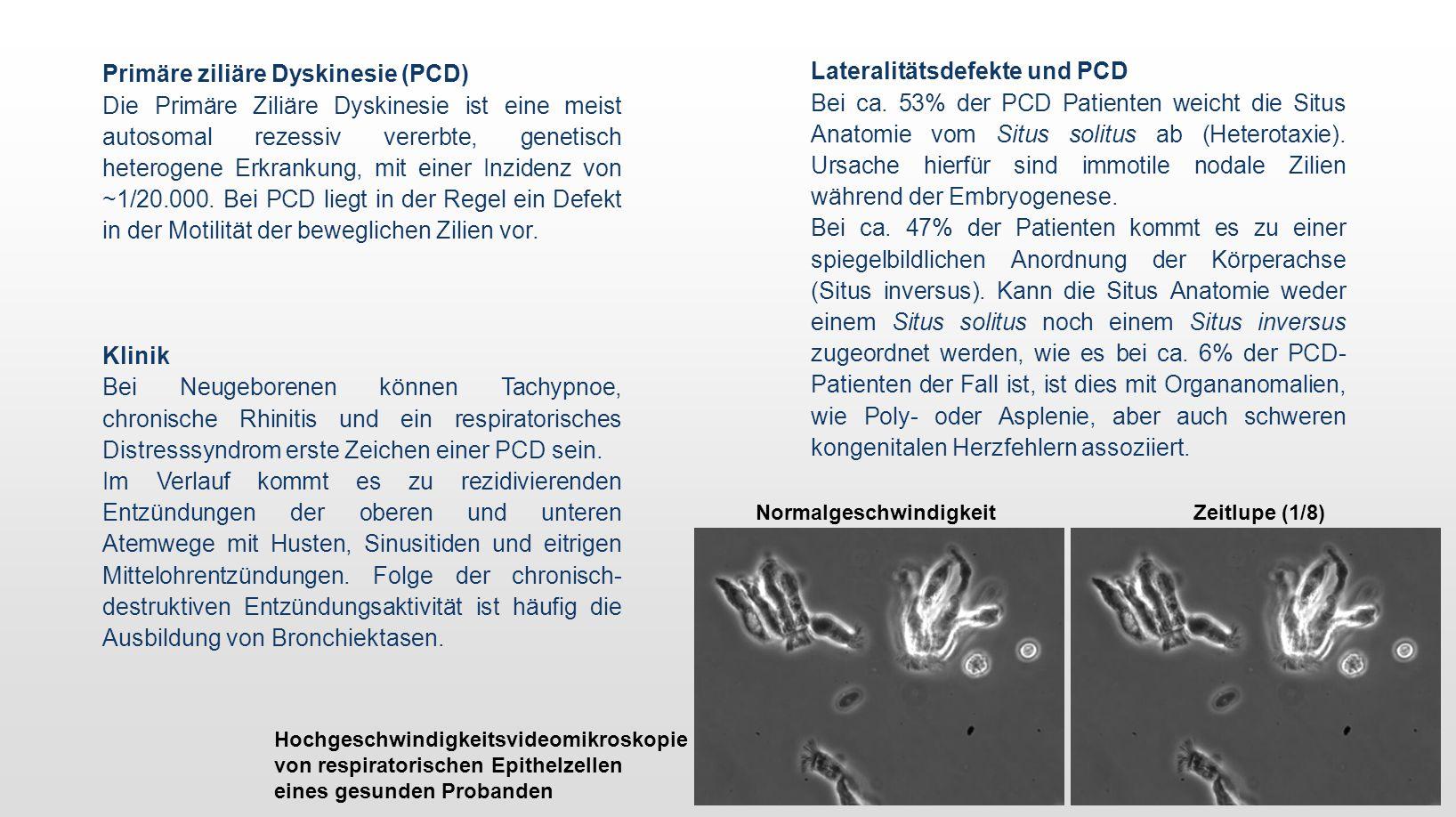 Primäre ziliäre Dyskinesie (PCD) Die Primäre Ziliäre Dyskinesie ist eine meist autosomal rezessiv vererbte, genetisch heterogene Erkrankung, mit einer Inzidenz von ~1/20.000.
