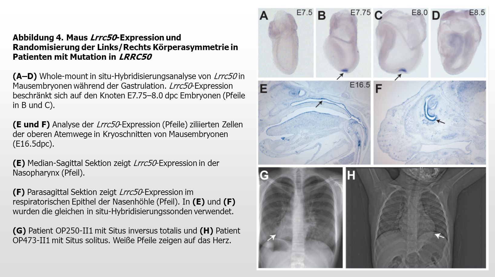Abbildung 4. Maus Lrrc50-Expression und Randomisierung der Links/Rechts Körperasymmetrie in Patienten mit Mutation in LRRC50 (A–D) Whole-mount in situ