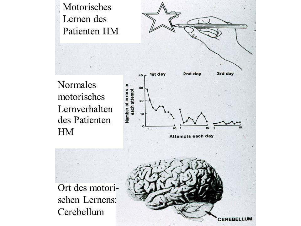 Motorisches Lernen des Patienten HM Normales motorisches Lernverhalten des Patienten HM Ort des motori- schen Lernens: Cerebellum