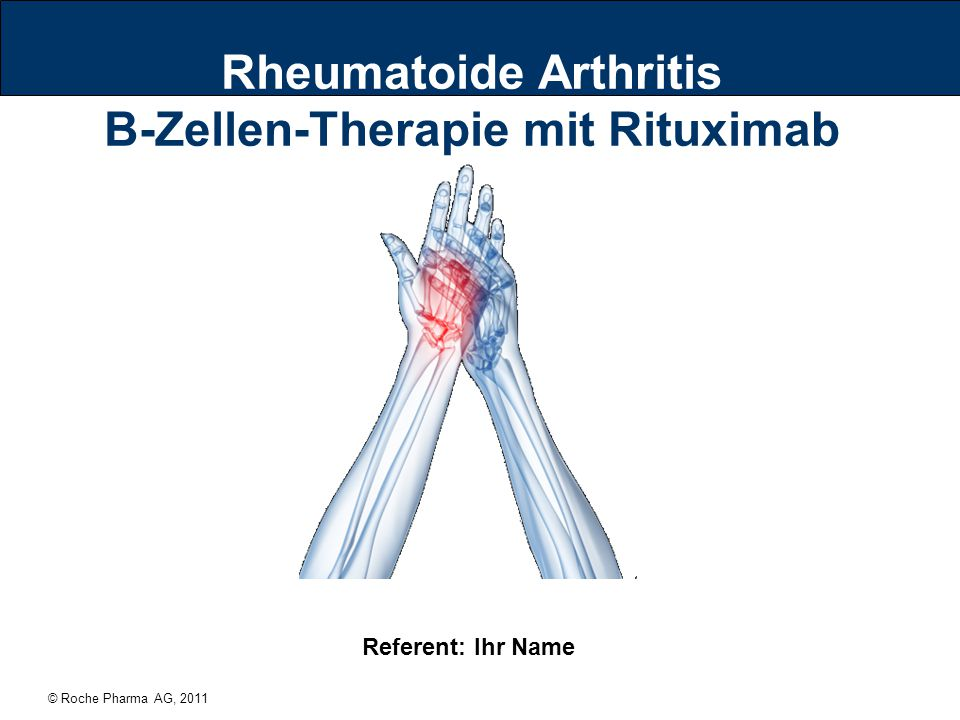 © Roche Pharma AG, 2011 Rheumatoide Arthritis B-Zellen-Therapie mit Rituximab Referent: Ihr Name