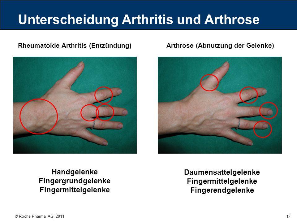 © Roche Pharma AG, 2011 12 Unterscheidung Arthritis und Arthrose Rheumatoide Arthritis (Entzündung)Arthrose (Abnutzung der Gelenke) Handgelenke Finger