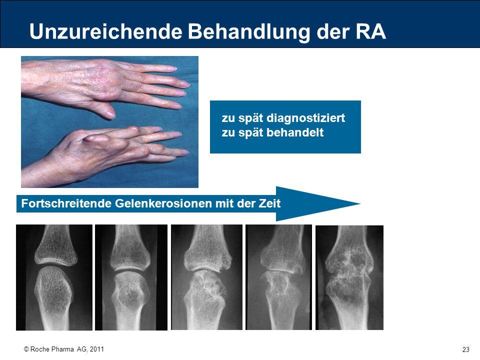 © Roche Pharma AG, 2011 23 Unzureichende Behandlung der RA Fortschreitende Gelenkerosionen mit der Zeit zu spät diagnostiziert zu spät behandelt