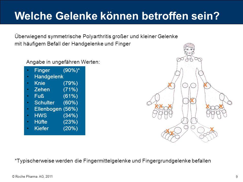 © Roche Pharma AG, 2011 9 Überwiegend symmetrische Polyarthritis großer und kleiner Gelenke mit häufigem Befall der Handgelenke und Finger Finger (90%