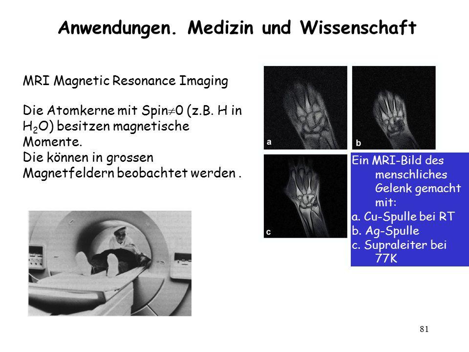 81 Anwendungen. Medizin und Wissenschaft MRI Magnetic Resonance Imaging Die Atomkerne mit Spin  0 (z.B. H in H 2 O) besitzen magnetische Momente. Die