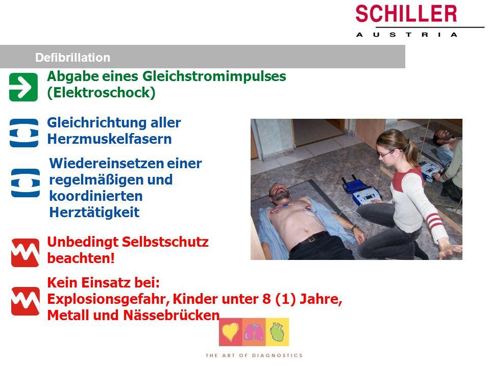 Zeitliche Entwicklung Keine HLW verzögerte Defibrillation Frühe HLW verzögerte Defibrillation Frühe HLW frühe Defibrillation Frühe HLW sehr frühe Defi