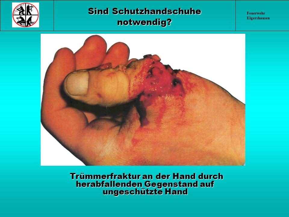 Sind Schutzhandschuhe notwendig? Trümmerfraktur an der Hand durch herabfallenden Gegenstand auf ungeschützte Hand Trümmerfraktur an der Hand durch her