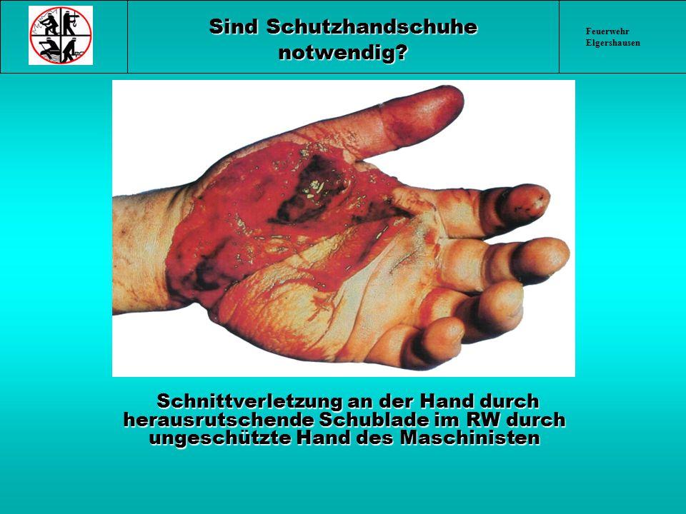 Feuerwehr Elgershausen Sind Schutzhandschuhe notwendig? Schnittverletzung an der Hand durch herausrutschende Schublade im RW durch ungeschützte Hand d