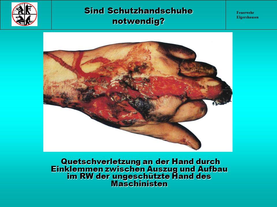 Feuerwehr Elgershausen Sind Schutzhandschuhe notwendig? Quetschverletzung an der Hand durch Einklemmen zwischen Auszug und Aufbau im RW der ungeschütz