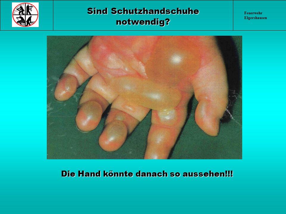 Feuerwehr Elgershausen Sind Schutzhandschuhe notwendig? Die Hand könnte danach so aussehen!!! Die Hand könnte danach so aussehen!!!