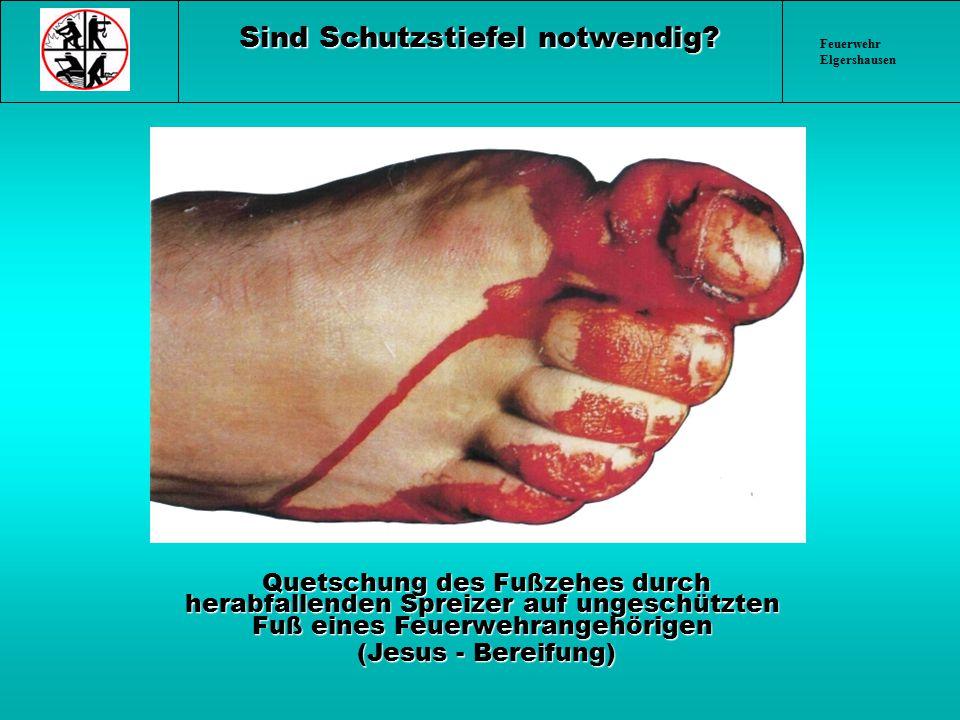 Feuerwehr Elgershausen Sind Schutzstiefel notwendig? Quetschung des Fußzehes durch herabfallenden Spreizer auf ungeschützten Fuß eines Feuerwehrangehö