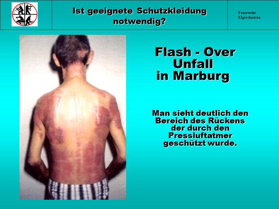 Feuerwehr Elgershausen Ist geeignete Schutzkleidung notwendig? Flash - Over Unfall in Marburg Flash - Over Unfall in Marburg Man sieht deutlich den Be