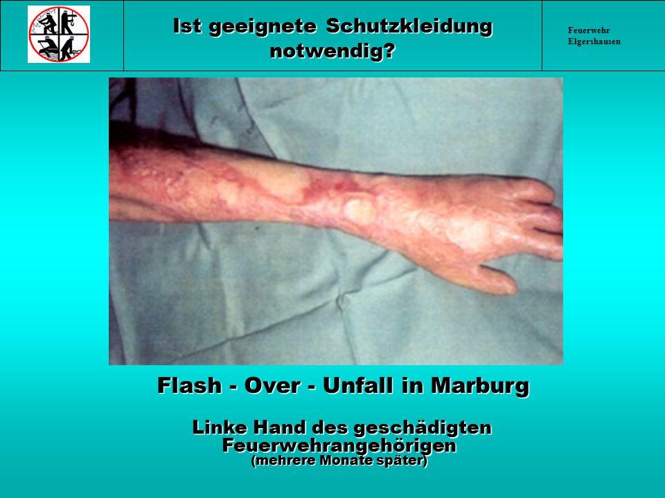 Feuerwehr Elgershausen Ist geeignete Schutzkleidung notwendig? Flash - Over - Unfall in Marburg Flash - Over - Unfall in Marburg Linke Hand des geschä