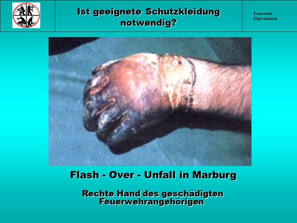Feuerwehr Elgershausen Ist geeignete Schutzkleidung notwendig? Flash - Over - Unfall in Marburg Flash - Over - Unfall in Marburg Rechte Hand des gesch