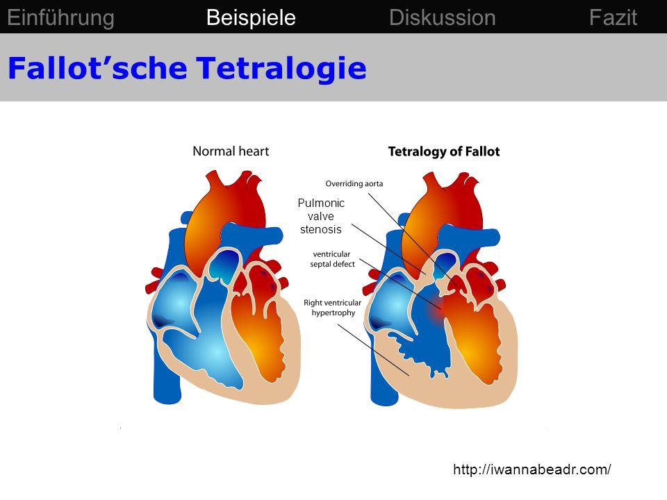 http://iwannabeadr.com/ Pulmonic valve stenosis Einführung Beispiele Diskussion Fazit Fallot'sche Tetralogie