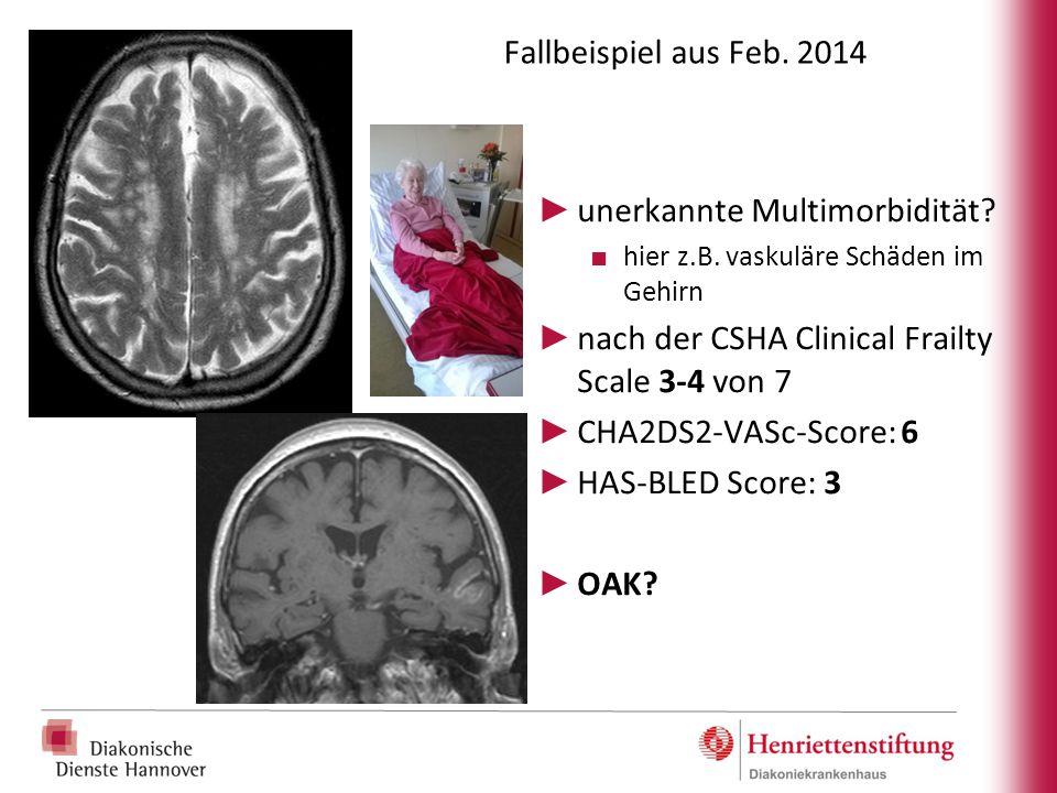 Fallbeispiel aus Feb. 2014 ► unerkannte Multimorbidität? ■ hier z.B. vaskuläre Schäden im Gehirn ► nach der CSHA Clinical Frailty Scale 3-4 von 7 ► CH