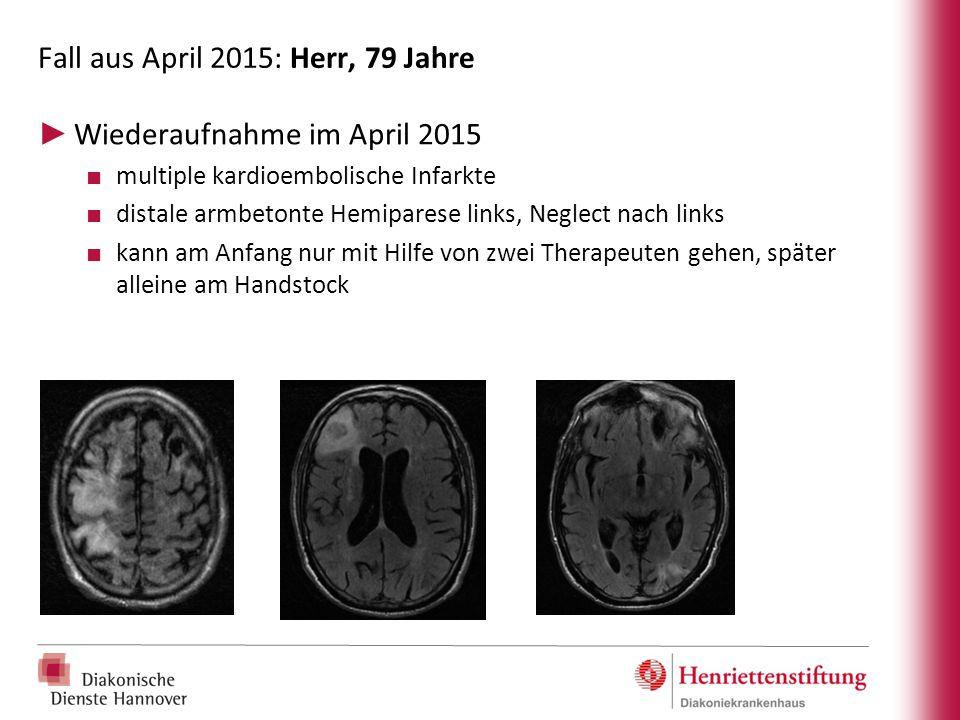 Fall aus April 2015: Herr, 79 Jahre ► Wiederaufnahme im April 2015 ■ multiple kardioembolische Infarkte ■ distale armbetonte Hemiparese links, Neglect