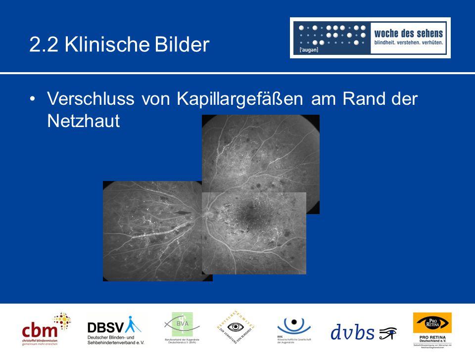2.2 Klinische Bilder Verschluss von Kapillargefäßen am Rand der Netzhaut
