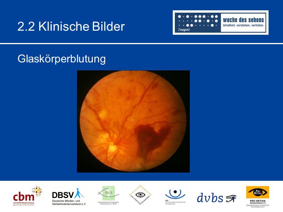 2.2 Klinische Bilder Glaskörperblutung
