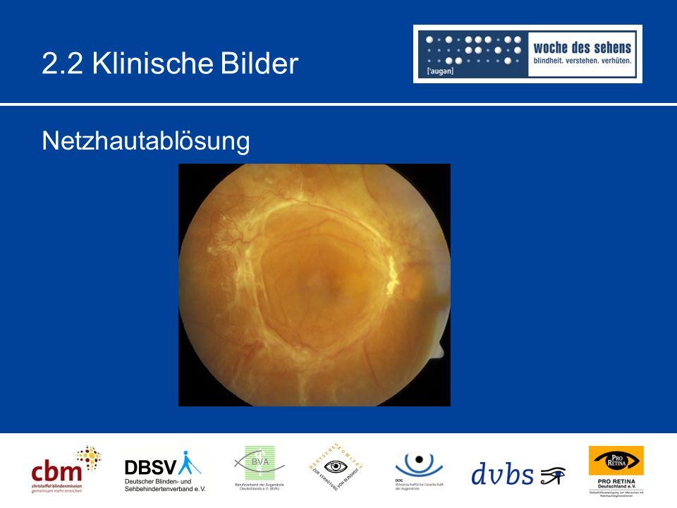 2.2 Klinische Bilder Netzhautablösung