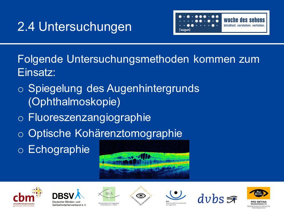 2.4 Untersuchungen Folgende Untersuchungsmethoden kommen zum Einsatz: o Spiegelung des Augenhintergrunds (Ophthalmoskopie) o Fluoreszenzangiographie o Optische Kohärenztomographie o Echographie