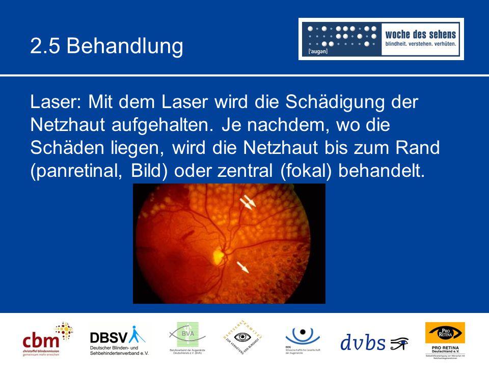 2.5 Behandlung Laser: Mit dem Laser wird die Schädigung der Netzhaut aufgehalten.