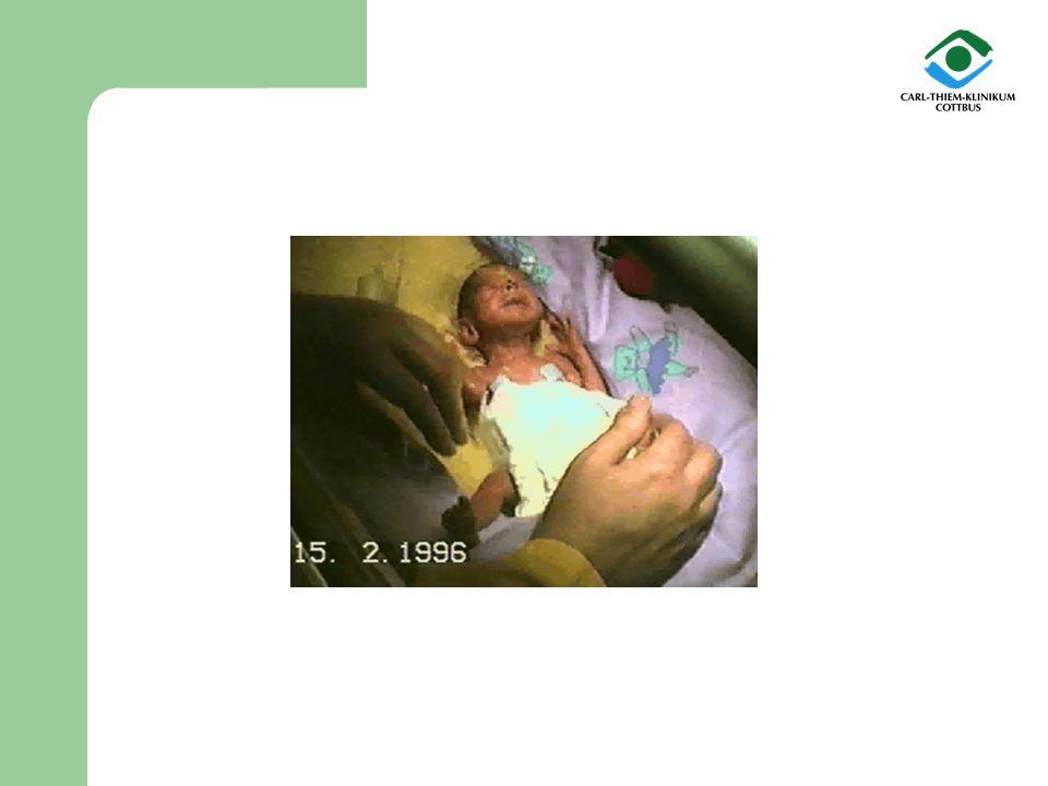 aus Cottbus wird der Baby-Notarzt benachrichtigt das Kind wird vor Ort intensivmedizinisch versorgt und nach Cottbus verlegt hier erleidet es eine schwere Hirnblutung mit nachfolgender Entwicklung eines Hydrocephalus (Wasserkopf) über mehrere Wochen muss Hirnwasser abpunktiert werden lange Zeit ist eine künstliche Beatmung erforderlich im Alter von ca.
