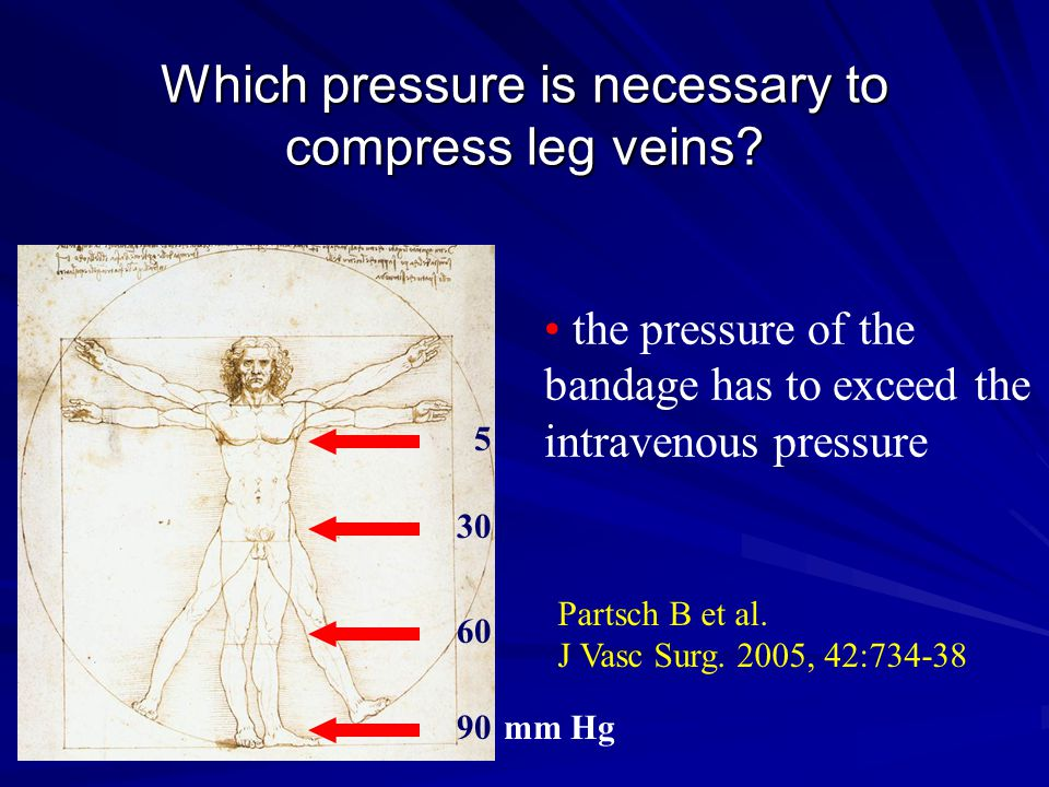 Which pressure is necessary to compress leg veins? 90 60 30 mm Hg the pressure of the bandage has to exceed the intravenous pressure 5 Partsch B et al