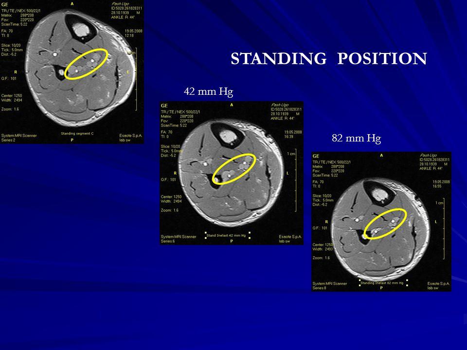 42 mm Hg 82 mm Hg STANDING POSITION