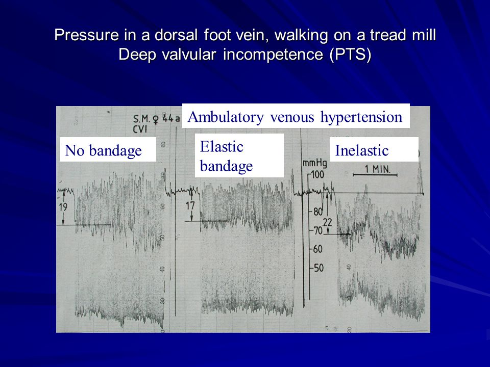 Pressure in a dorsal foot vein, walking on a tread mill Deep valvular incompetence (PTS) Pressure in a dorsal foot vein, walking on a tread mill Deep