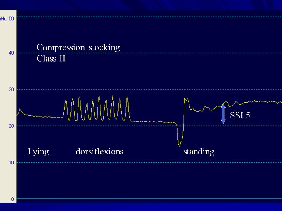 Compression stocking Class II SSI 5 Lying dorsiflexions standing