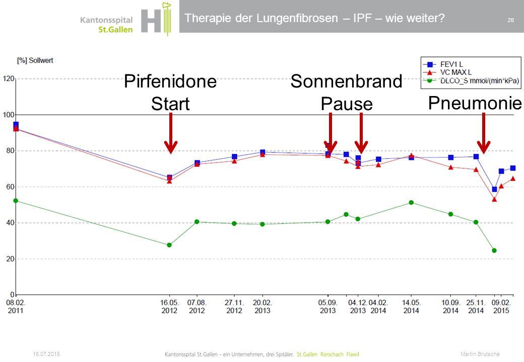 Therapie der Lungenfibrosen – IPF – wie weiter? 16.07.2015 Martin Brutsche 28 Pirfenidone Start Sonnenbrand Pause Pneumonie
