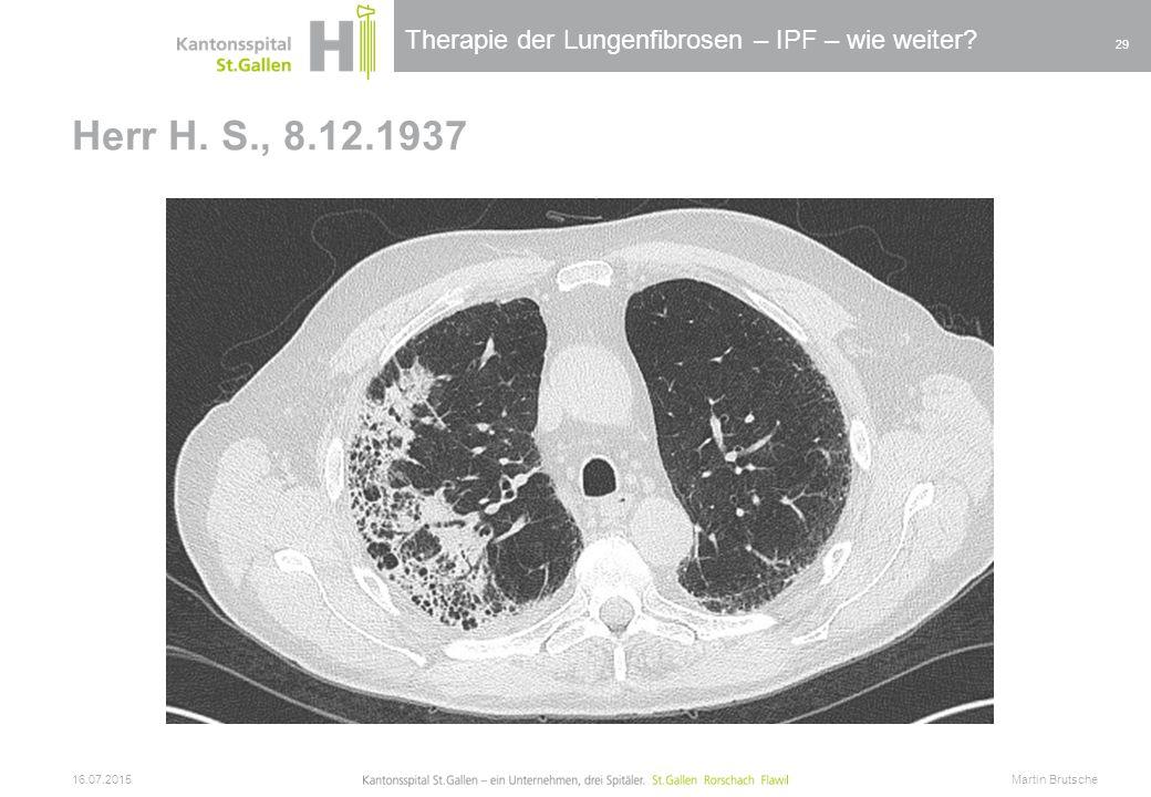 Therapie der Lungenfibrosen – IPF – wie weiter? Herr H. S., 8.12.1937 16.07.2015 Martin Brutsche 29