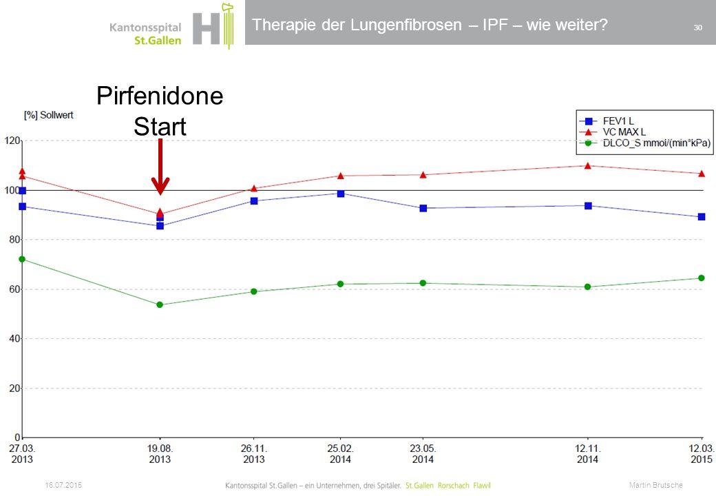 Therapie der Lungenfibrosen – IPF – wie weiter? 16.07.2015 Martin Brutsche 30 Pirfenidone Start