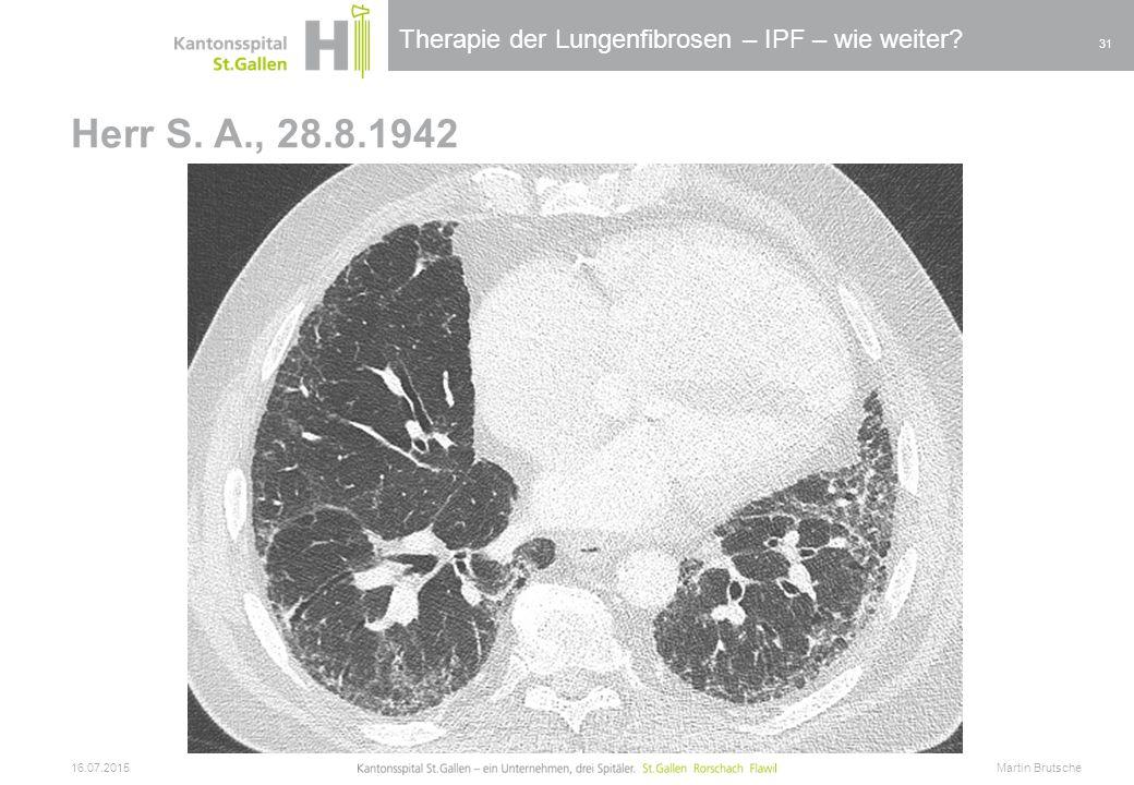 Therapie der Lungenfibrosen – IPF – wie weiter? Herr S. A., 28.8.1942 16.07.2015 Martin Brutsche 31