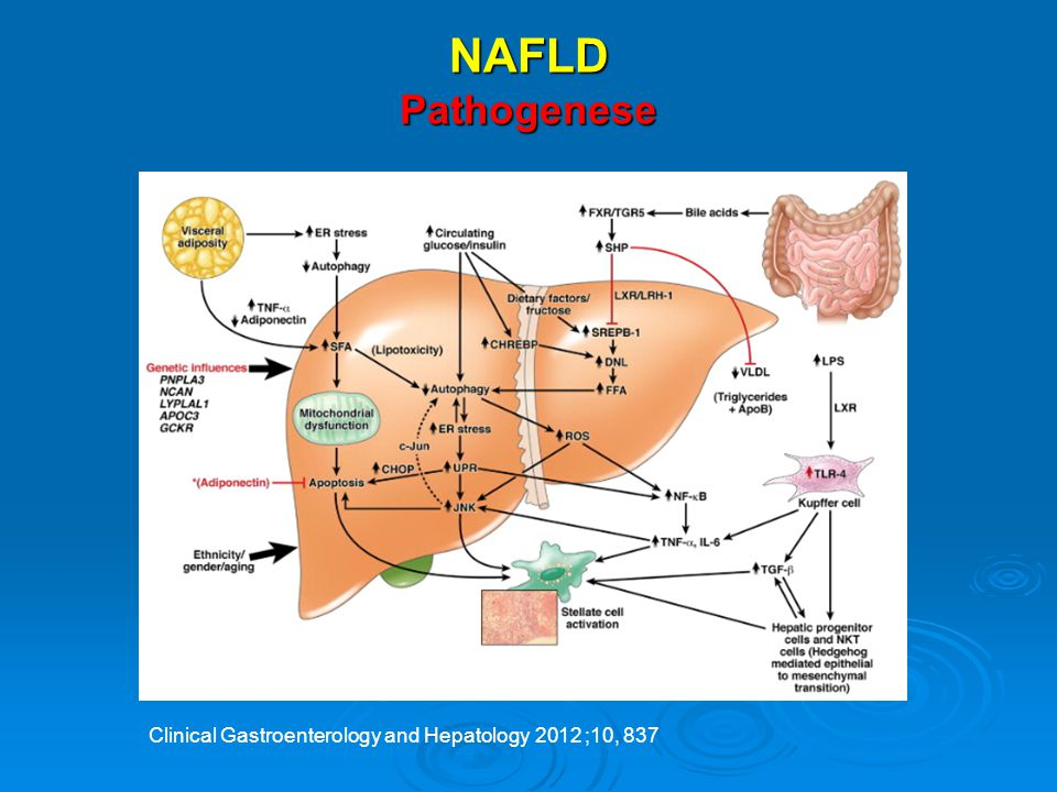 NAFLD Pathogenese Clinical Gastroenterology and Hepatology 2012 ;10, 837