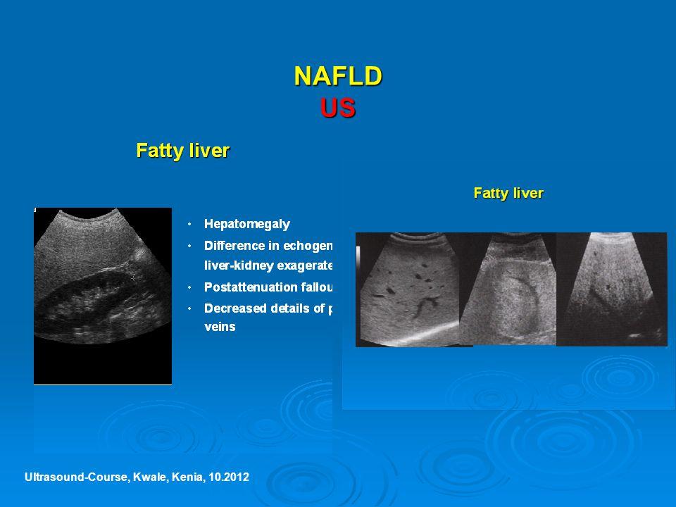 NAFLD US Ultrasound-Course, Kwale, Kenia, 10.2012