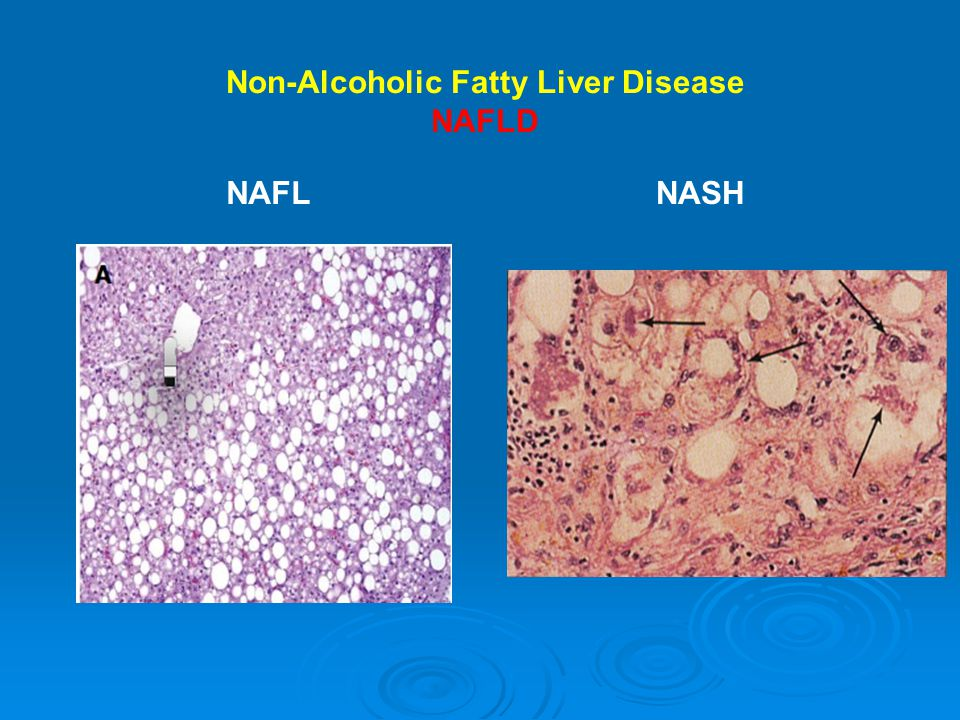 Possible Mechanisms Leading to Cardiovascular Disease in Patients with Nonalcoholic Fatty Liver Disease Targher G et al.