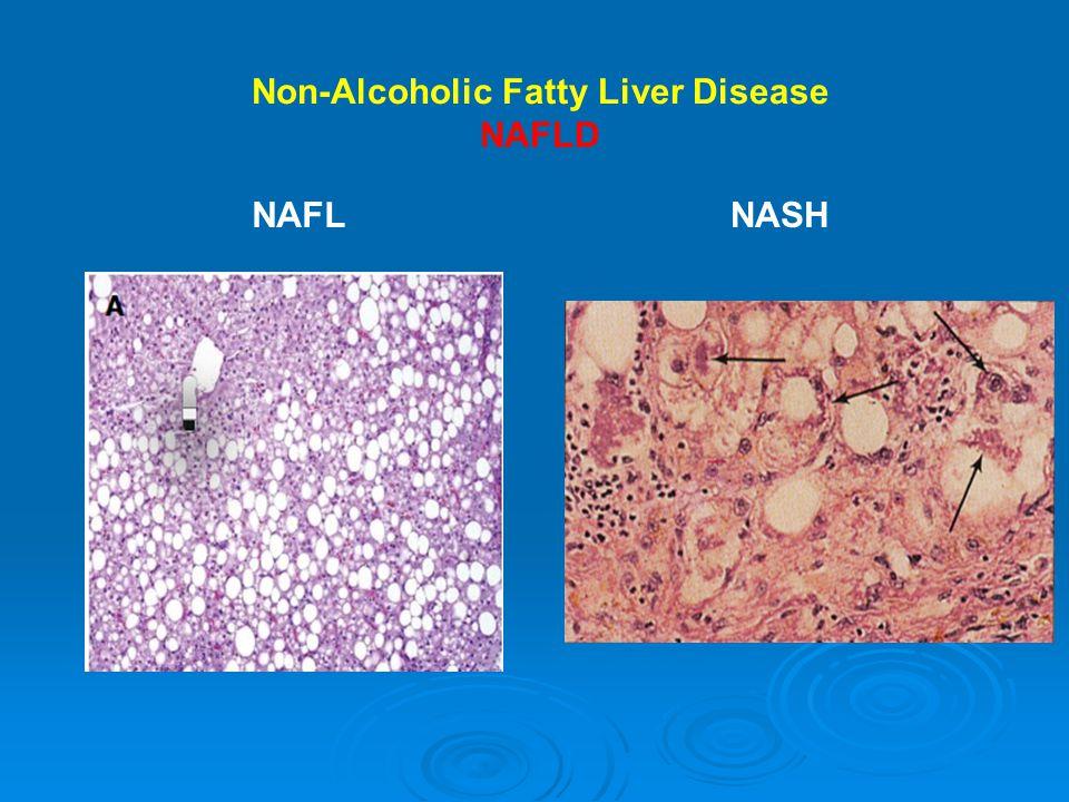 NAFLNASH Non-Alcoholic Fatty Liver Disease NAFLD