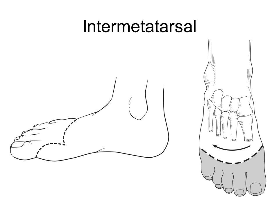 Intermetatarsal