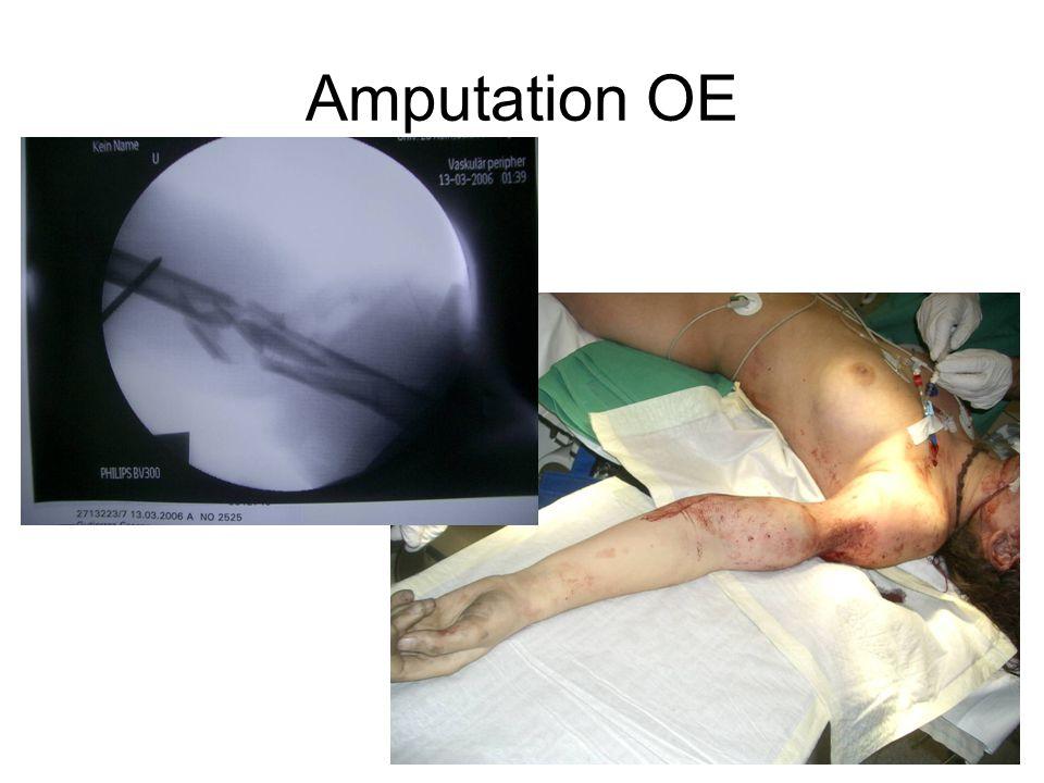 Amputation OE