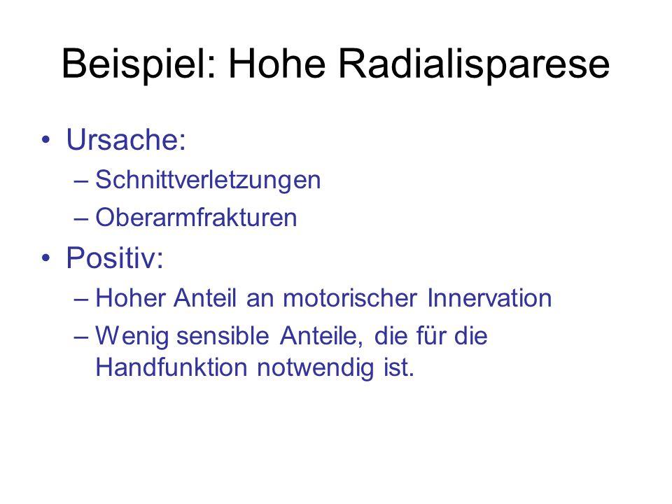 Beispiel: Hohe Radialisparese Ursache: –Schnittverletzungen –Oberarmfrakturen Positiv: –Hoher Anteil an motorischer Innervation –Wenig sensible Anteil