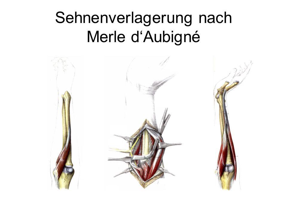 Sehnenverlagerung nach Merle d'Aubigné S Pechlaner 1999