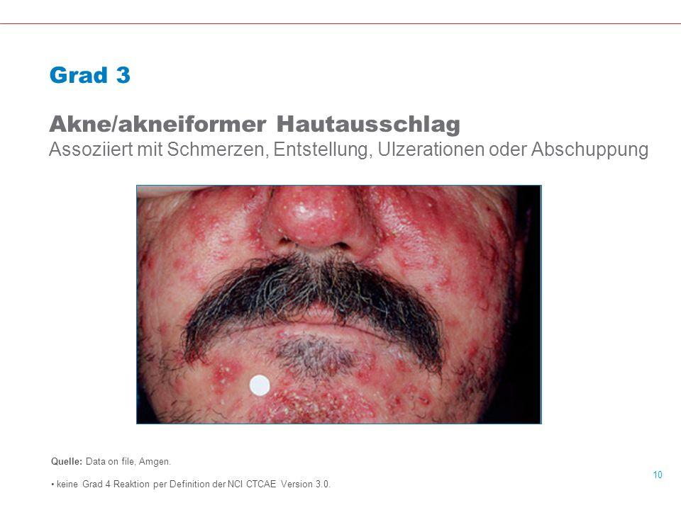 10 Grad 3 Akne/akneiformer Hautausschlag Assoziiert mit Schmerzen, Entstellung, Ulzerationen oder Abschuppung Quelle: Data on file, Amgen.